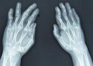 RA和PsA外周骨损害差异显著