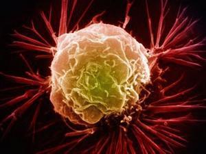 不良生活方式增加女性患乳腺癌风险