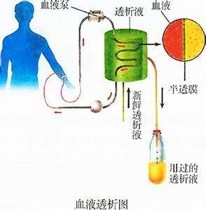 腹膜透析和血液透析患者生存时间相当