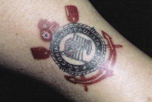 纹身可导致肉芽肿