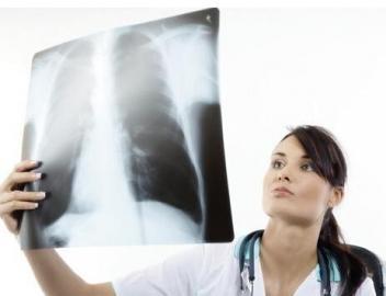 重度吸烟者应常规进行肺癌的CT筛查